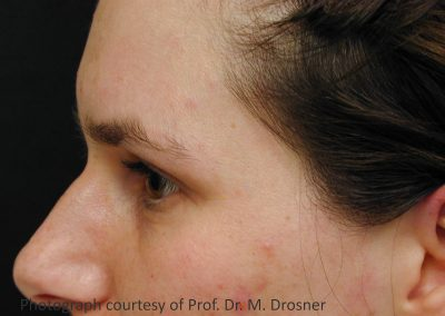 05_acne_8months_after_3TX_PR