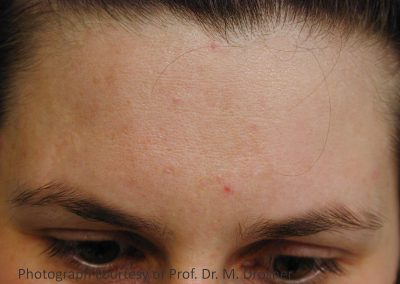 06_acne_after_3TX_PR