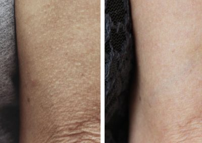 1._Wrinkle_Reduction_Before_and_6_months_after