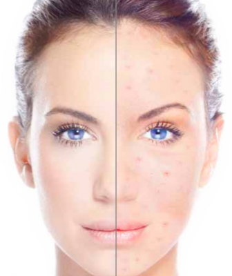 Laser Acne Treatment and how it works